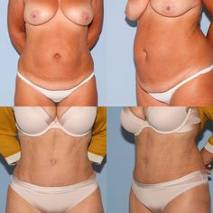 Bei dieser Patientin habe ich eine ausgedehnte Fettabsaugung des Bauches und der Seiten/Hüften durchgeführt und in gleicher Sitzung die überschüssige Haut durch eine Bauchstraffung entfernt - das Nachher-Bild ist etwa 1 Jahr nach dem Eingriff entstanden. Für mich Infos bitte einfach auf den Link klicken! Bikinis, Swimwear, Fashion, Wels, Linz, Adipose Tissue, Lower Belly, Liposuction, You're Welcome
