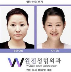 Female South Korean Plastic Surgery Before And After