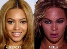 Celebrity Beyonce Nose Job Photo Before And After Plastic Surgery - plasticsurge. Celebrity Beyonce Nose Photo du travail avant et après . Plastic Surgery Gone Wrong, Celebrity Plastic Surgery, Skin Whitening Soap, Natural Skin Whitening, Bad Nose Jobs, Botox Results, Plastic Surgery Pictures, Plastic, Lips