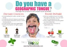 geographic tongue home remedies (As geographic tongue can occur due to a vitamin B deficiency, you need to eat more vitamin B-rich foods; Zinc deficiency is also associated with geographic tongue and other oral problems) Psoriasis Remedies, Holistic Treatment, Home Treatment, Top 10 Home Remedies, Natural Remedies, Herbal Remedies, Burning Mouth Syndrome, Tongue Sores, Home Remedies