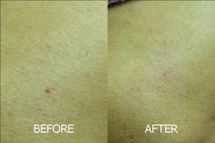 Removal of cherry angioma – instant results