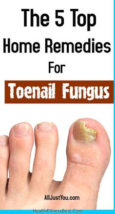The 5 Top-Most Home Remedies For Toenail Fungus #toenail #fungus #beauty #nail #infection #hair #health #remedies #heal #diy