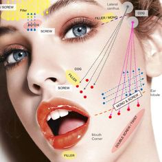 Lift and scrub — PDO Thread free consultations and Medi Facials now available!… Lift and scrub — PDO Thread free consultations and Medi Facials now available! Call or text 07841389233 for more info Facial Fillers, Botox Fillers, Dermal Fillers, Face Dermal, Forehead Lift, Face Threading, Thread Lift, Facial Aesthetics, Medical Aesthetics