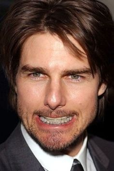 In Tom Cruise decided to fine tune his teeth by getting braces. Celebrities With Braces, Dental Care Center, After Braces, Getting Braces, Top Dental, Implant Dentist, Teeth Braces, Faye Dunaway, Best Dentist