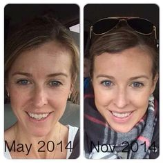 Before and After pictures. Redefine regimen, Rodan + Fields. Begin your journey! www.debbiedreamskin.myrandf.com
