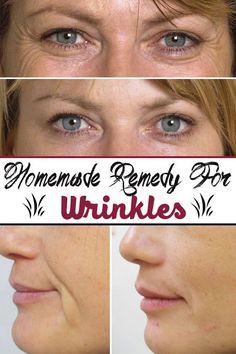 Homemade remedy for wrinkles:
