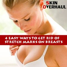 Did you know that a lot celebrities, such as Lady Gaga have stretch marks on their breasts? Here are 4 easy ways to get rid of them! Stretch Marks Coconut Oil, Bio Oil Stretch Marks, Stretch Marks On Thighs, Prevent Stretch Marks, Stretch Mark Remedies, Stretch Mark Treatment, Best Stretch Mark Removal, Anti Aging, Health And Wellness
