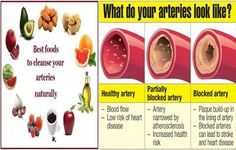Three Super Foods For Cleansing The Arteries -  The arteries are the blood vessels that carry oxygen and blood to different tissues of the body, the arteries can get clogged by plaque build ups which will prevent the blood and oxygen from feeding the different parts of the body which in result lead to many serious health problems including...