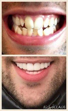 Diseño de Sonrisa Dra carolina Guilamo Privilege Dental