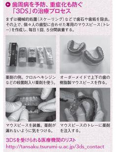 歯周病に新治療「3DS」 専用マウスピースを1日5分|WOMAN SMART|NIKKEI STYLE