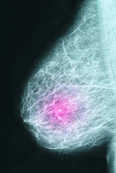 Study Links Breast Cancer Risk to Early-Life Diet and Metabolic Syndrome