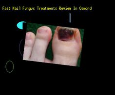 Fast nail fungus treatments review in osmond - Nail Fungus Remedy. You have nothing to lose! Visit Site Now