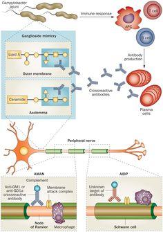 guillain-barre syndrome | Guillain-barre syndrome (Acute Autoimmune Neuropathy; Acute ...