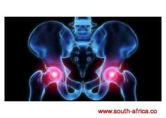 Hip pain or sacroiliac joint pain (SI joint pain), is one of the most common conditions that Doctors of Chiropractic diagnose and treat. Si Joint Pain, Hip Pain, Tonifier Son Corps, Doctor Of Chiropractic, Muscle Atrophy, Hip Replacement, Medical News, Alternative Treatments, Michael Phelps