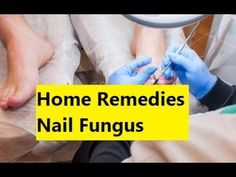 Home Remedies Nail Fungus - How to Get Rid of Toenail Fungus Naturally #ToenailFungus