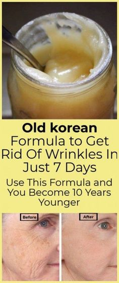 Old korean Formula to Get Rid Of Wrinkles In Just 7 Days Use This Formula and You Become 10 Years Younger - HUSSIS Today - Sandy Harshfield - beauty skin care Beauty Care, Beauty Skin, Beauty Hacks, Health And Beauty, Beauty Tips, Diy Beauty, Beauty Ideas, Beauty Products, Homemade Beauty