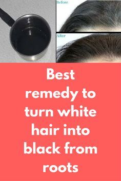 Best remedy to turn white hair into black from roots Remedy For White Hair, Grey Hair Remedies, Home Remedies For Hair, Diy Hacks, Beauty Care, Beauty Skin, Prevent Grey Hair, Skin Logo, Lemon Face Mask