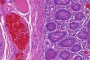 Advanced viral gene therapy eradicates prostate cancer in preclinical experiments -- ScienceDaily