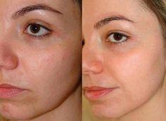 A dica de hoje é uma receita caseira para clarear manchas do rosto, sejam marcas de acnes ou sardas! Está formula ajuda também a restaurar a nutrição da pele !  O benefícios do Bepantol para