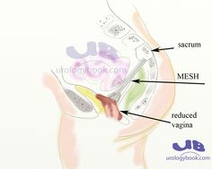 sacroculpopexy - Google Search Female Reproductive System, Medical Coding, Map, Google Search, Location Map, Maps