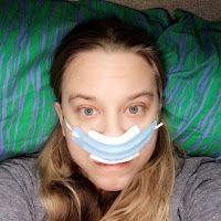 Sinus Surgery!  Documenting my progress.    AERD, Samters Triad, Septoplasty, Nasal Surgery.