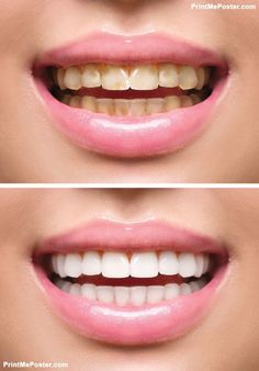 Poster of Woman Teeth Before and After Whitening Happy smiling woman Dental health Concept Oral Care Teeth Whitening That Works, Whitening Skin Care, Teeth Whitening Remedies, Natural Teeth Whitening, Teeth Health, Dental Health, Dental Care, Oral Health, Tooth Decay Treatment