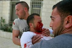 PHOTO: Young man wounded by #Israel on West Bank 22 February. #Palestine #WestBank