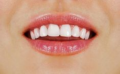 6 Effective Ways To Get Healthy White Teeth Teeth Dentist, White Teeth, Oral Health, Get Healthy, Dental, Tips, Blog, Dental Health, Advice