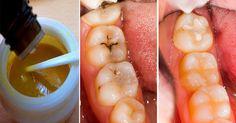 Теперь о проблемах с зубами можно забыть!
