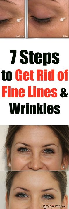 Because fine lines are a pain in the butt!