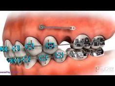 ORTOCERVERA / Ortodoncia: Asas en U - Compensación Oclusal - Módulos y Elásticos - YouTube