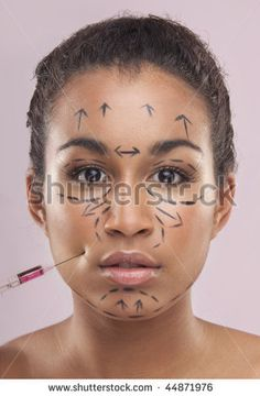 Drawn lines on a mixed color,woman's face as marks for facial plastic surgery by NAS CRETIVES, via ShutterStock