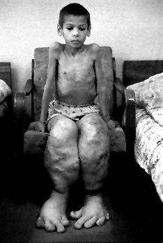 Les victimes de Tchernobyl. (02)