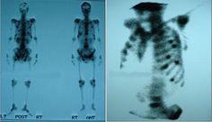 ung thư, di căn, di căn xương, chong ung thu, dieu tri ung thu, trieu chung ung thu, điều trị triệu chứng, akchongungthu.com, http://akchongungthu.com/chan-doan-va-dieu-tri-ung-thu-di-can-xuong/