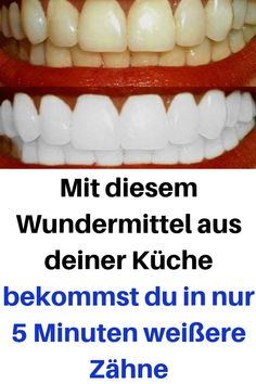 With this miracle cure from your kitchen you can get .- Mit diesem Wundermittel aus deiner Küche bekommst du in nur 5 Minuten weißere … With this miracle cure from your kitchen you will get whiter teeth in just 5 minutes - Beauty Care, Diy Beauty, Beauty Skin, Beauty Hacks, Face Beauty, Beauty Women, Beauty Tips For Face, Natural Beauty Tips, Natural Hair