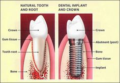 Natural Tooth and Root vs. Dental Implant and Crown #DentalImplants #Implants #ImplantDentist