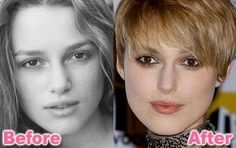 Keira Knightley looks a little bit different before and after her nose job. The plastic surgery subtly decreased the tip and bridge size of her nose. Bad Celebrity Plastic Surgery, Bad Plastic Surgeries, Plastic Surgery Photos, Plastic Surgery Procedures, Kate Winslet, Celebrities Before And After, Celebrities Then And Now, Worst Celebrities, Hollywood Celebrities