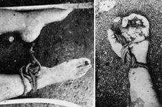 VUELOS DE LA MUERTE  La victima de la foto fue encontrada con fracturas en el cuerpo, heridas con arma punzante, orificios de bala y signos de violación.  La mayoría de los cuerpos aparecían hinchados, putrefactos, sus ojos y extremidades comidos por la fauna marina. También presentaban quemaduras, atados de pies y manos. Magullados por los golpes recibidos.  Escogí esta foto porque me pareció que documentaba muy fríamente los restos de las víctimas.