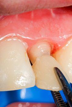 Crowns Lake Worth Florida Dentist, health, Dr. Suarez