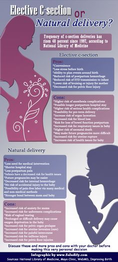 Elective c-section or natural delivery? Pros and cons (more info by clicking on graphic)
