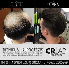 A bionikus hajprotézis bármekkora területre feltehető, nőknél és férfiaknál is egyaránt alkalmazható. Ez a fantasztikus Trichotechnológiai módszer sokak számára nyújthat azonnali megoldást kopaszodások esetén, elérhető áron, hiszen a felébe sem kerül egy hajátültetésnek, nincs invazív műtéti beavatkozás, és nincs határa a hajsűrítésnek a donorzóna kiürülése miatt. Tudj meg többet a hajprotézisről, látogass el ingyenes nyíltnapunkra!