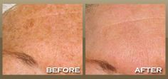 Best way to reduce wrinkles fast Like Me, Sculpting, Rid, Therapy, Hair Beauty, Yummy Food, Romantic, Health, Fashion