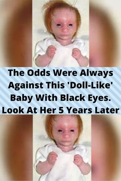 The #Odds Were Always #Against This 'Doll-Like' Baby With #Black Eyes. Look At Her 5 Years #Later