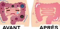Comment nettoyer 13 kilos de toxines accumulées dans votre côlon avec seulement…