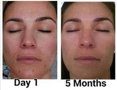 5 month results #skincare  johnnyray.nerium.com