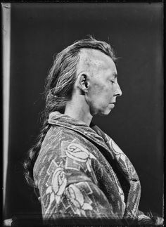 Beautiful portraiture of the very first brain surgery patients | Dangerous Minds