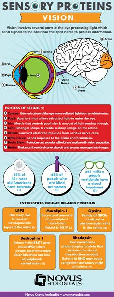 Vision Infographic: Do you see how I see?