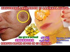 ΑΠΑΛΛΑΓΕΊΤΕ ΑΠΌ ΚΑΦΈ ΚΗΛΊΔΕΣ ΠΡΟΣΏΠΟΥ ΣΕ 15 ΛΕΠΤΆ ΜΕ ΜΆΣΚΑ ΦΛΟΎΔΑΣ ΜΑΝΤΑΡΙΝΙΟΎ-ΛΕΜΟΝΙΟΎ-ΦΡΟΝΤΊΔΑ ΤΟΥ - YouTube Spots On Face, Hair And Nails, Youtube, Lemon, Skin Care, Homemade, Mandarin Oranges, Periorbital Dark Circles, Stains