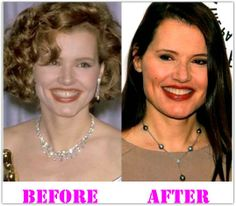 United States celebrity and former style design Geena Davis is said to have Geena Davis Plastic Surgery as she still preserves her excellent looks