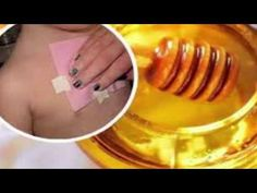 DIY Honey Wraps to Cure Cough and Eliminate Mucus from the Lungs. DIY Honey Wraps to Cure Cough and Eliminate Mucus from the Lungs.  Nectar is an astonishing superfood. It has been utilized as a part of customary prescription for many years to treat basic illnesses including ulcers gastric inconveniences skin wounds and blazes.   In the UK and Canada nectar is frequently prescribed by doctors as a treatment for hacks and sore throats. This treatment is incorporated for youngsters more than…